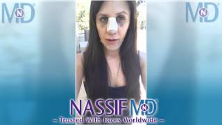 Vlog of My Revision Rhinoplasty - Alyssa | Dr. Paul Nassif