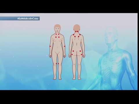 Lentiggini del corpo Sims 4