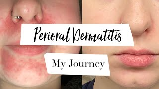 How I Treated My Perioral Dermatitis | MY JOURNEY