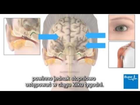 Bóle mięśni i stawów po SARS
