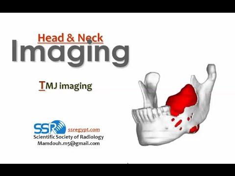 Übungstherapie für degenerative Bandscheibenerkrankungen der Halswirbelsäule