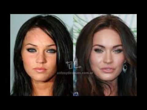El busto el aumento la cosmética