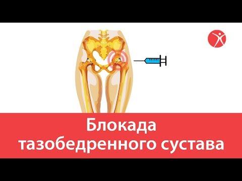Лечение спины баночным массажем