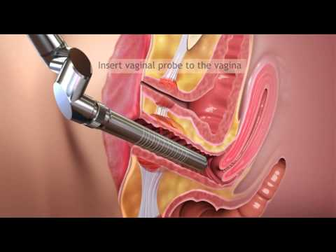 Femilift - LVR (Laser Vajinal Sıkılaştırma / Laser Vaginal Remodelling) Tedavi Yöntemi