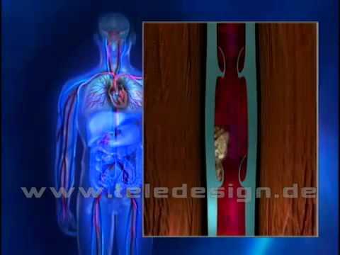 Die Behandlung der gestarteten Venenvarikose auf den Beinen