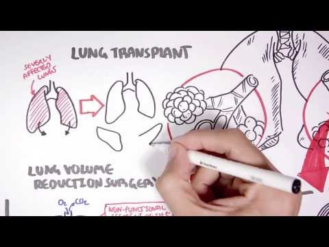 Video Emphysema Treatment