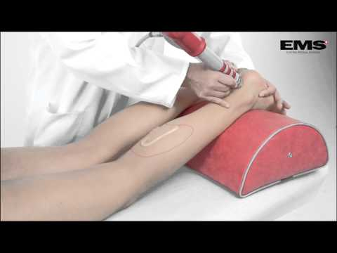 Esercizio terapeutico per cervicale della colonna vertebrale ernia