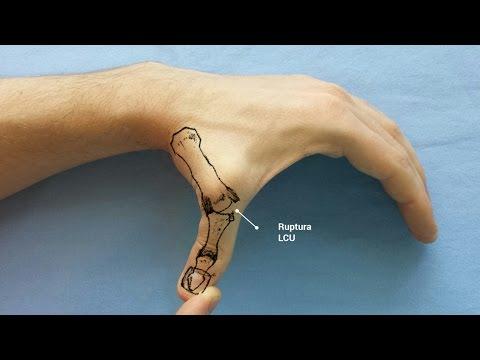 Inflamație în epicondilita articulației cotului