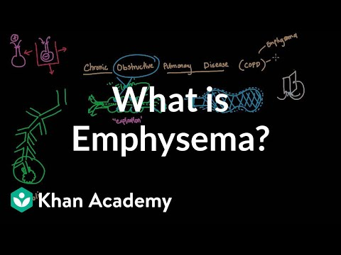 Video What is emphysema? | Respiratory system diseases | NCLEX-RN | Khan Academy