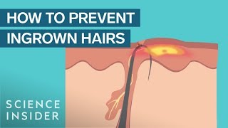 What Are Ingrown Hairs — And How To Treat Them