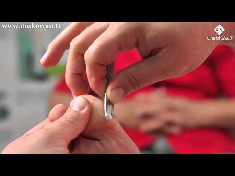 Hogyan lehet kezelni az akut artritisz