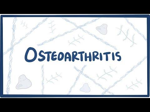 Artrita posttraumatică a tratamentului mâinilor