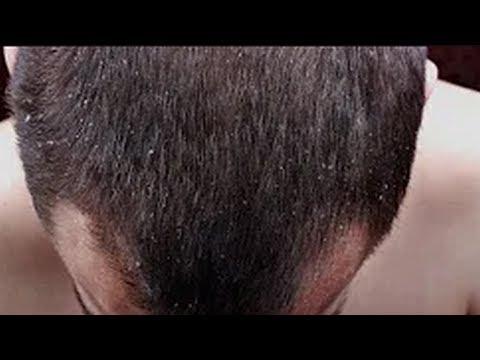 Wiele przytrzymać olej rycynowy na włosy
