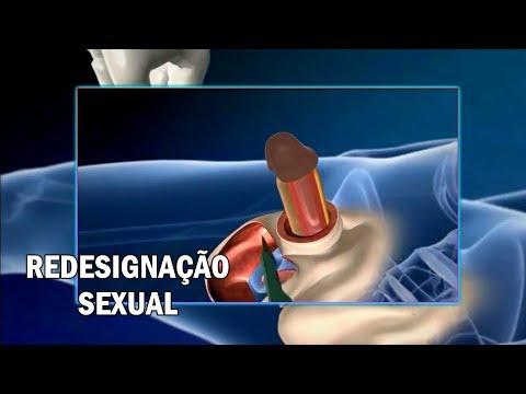 Cum se face o ecografie a prostatei și a vezicii urinare
