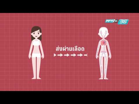 ขาปวดเข่า thrombophlebitis