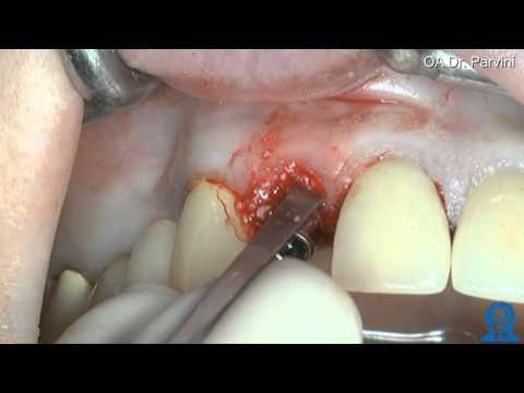 Halsschmerzen mit Osteochondrose der Halswirbelsäule