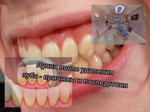 Лунка после удаления зуба - причины и последствия
