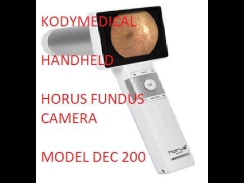 Horus DEC200 Handheld Digital Eye Fundus Camera