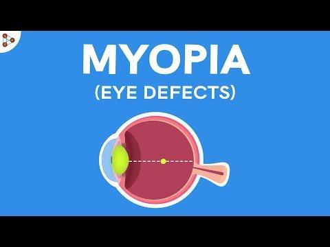 A látás vizsgálatának módszerei