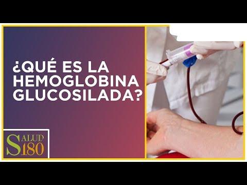 Etiología y patogénesis de la dependiente de insulina tipo 1 y tipo insulina-dependiente diabetes me