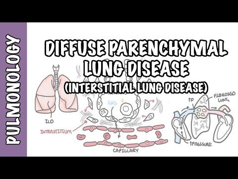 Choroby śródmiąższowe płuc (ILD) - klasyfikacja, patofizjologia, objawy