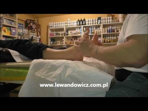 Ploskovalgusnaya deformacja stóp u dzieci z porażeniem mózgowym