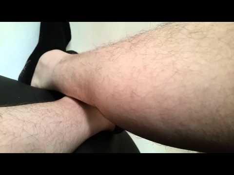 Die Ansätze auf den Daumen des Beines die Behandlung