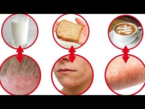 Berberys cukrzyca typu 2