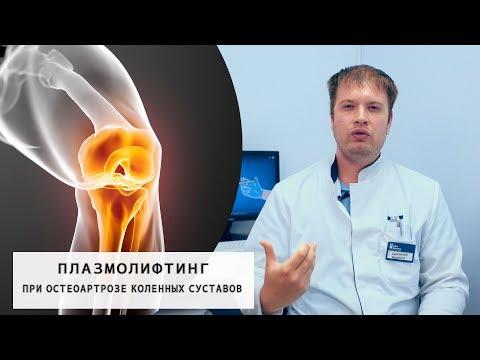 Плазмолифтинг суставов при Остеоартрозе | Лечение коленных суставов