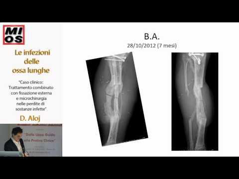 Come rafforzare larticolazione della caviglia dopo linfortunio