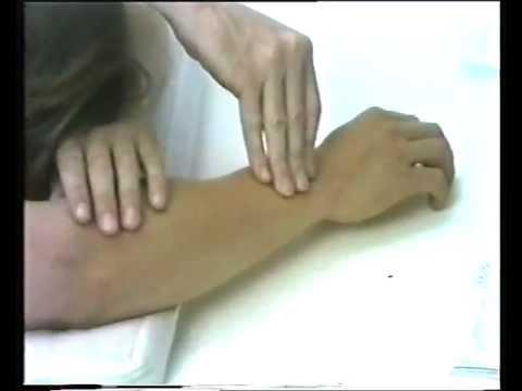 Protrusija der Scheiben der Halswirbelsäule s5-6