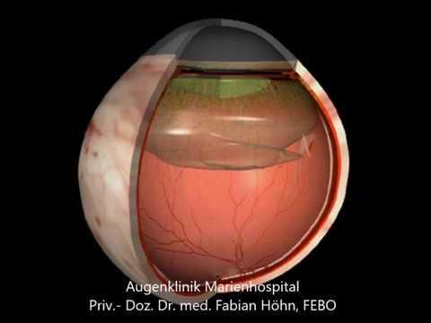 Die Öbung für die Hosenträger der unteren Augenlider