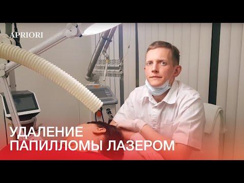 Зуд от кондиломы лечение