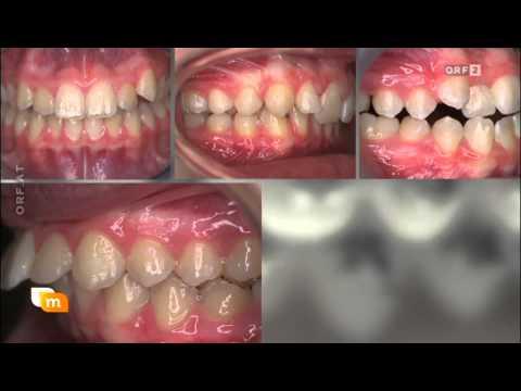 Video Kurz-Informationen zur Zahnspange - Dr. Monika Semelmayer - die-zahnspange.at