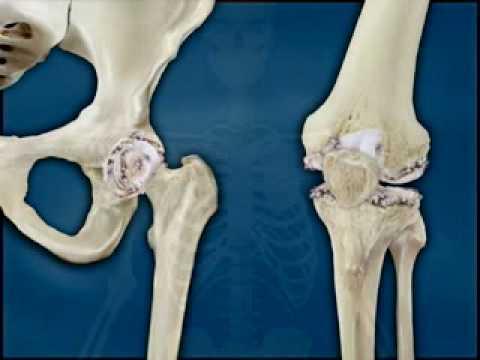 A prosztatagyulladás diagnosztizálása