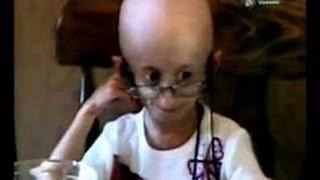 Смотреть онлайн Синдром Хатчинсона Гилфорда детская прогерия