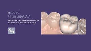 Exocad ChairsideCAD 2.1 6624 lab scanner case test