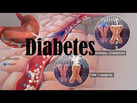 Сахарный диабет в казахстане 2016