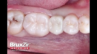 Chairside Live Episode 223: Protocol for Single-Tooth Implant Placement
