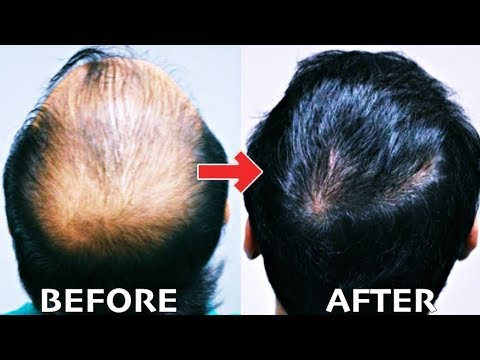 Do traktowania włosów podczerwieni