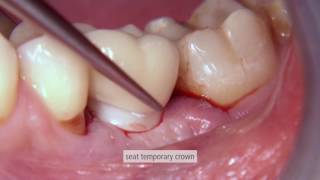 Place custom-made implant abutments and crowns with CEREC
