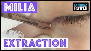 Milium Extraction from a Very Delicate Inner Eye Area