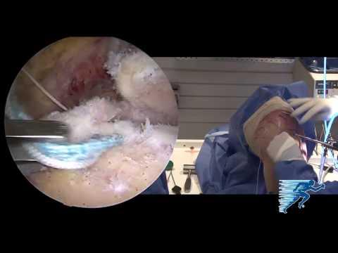 Arthroscopic Superior Capsular Reconstruction | Irreparable Rotator Cuff Tears