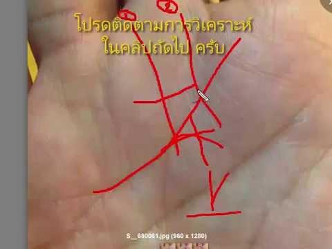 ผ่าตัดหลอดเลือดคาร์คอฟ