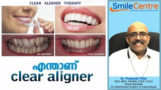 Clear aligner - Video