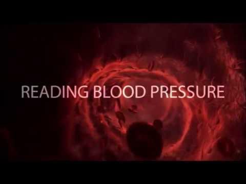 Portale Hypertension bei Kindern Blutungen
