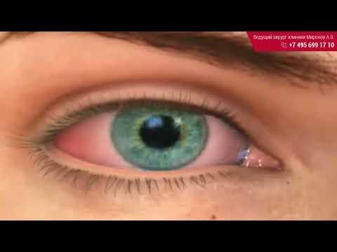 Дальнозоркость глаз лечение народными средствами