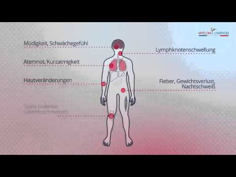 Diprospan mit Osteoarthritis des Knies