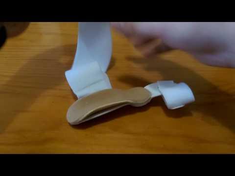 ส้นเท้าของความผิดปกติการเดินเท้าในเด็ก