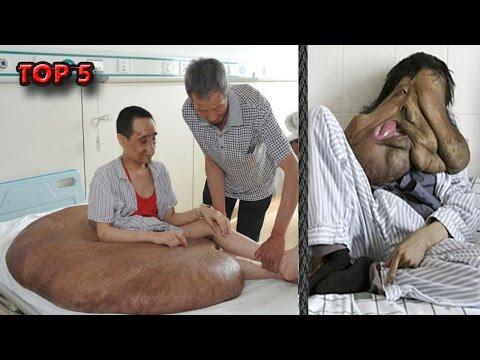 Eczema interdigitale su mani